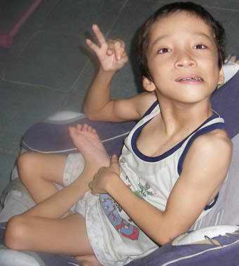 Cerebral-Palsy-child